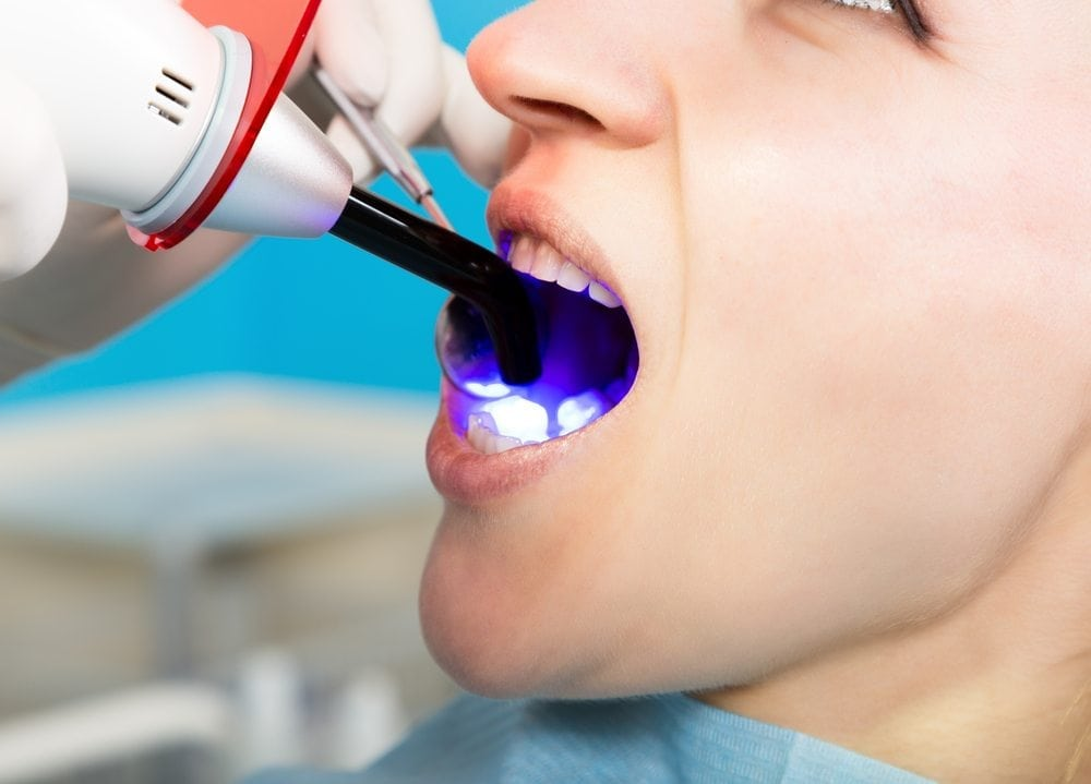 Laser mouth procedure